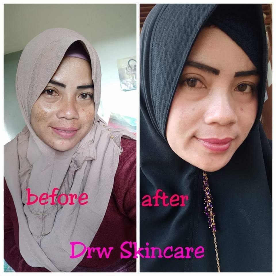 Viral Ini 10 Langkah Menghilangkan Bekas Jerawat Dari: Drw Skincare Masker Limpasu Aman