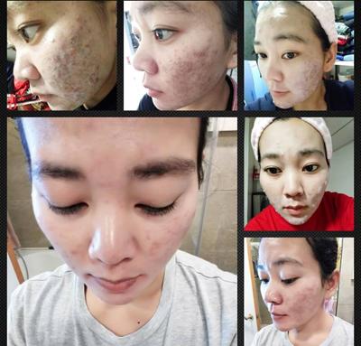 cream drw skincare testimoni ac2