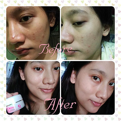 testimoni cream drw skincare ac1