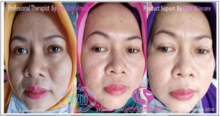 testimoni drw skin care