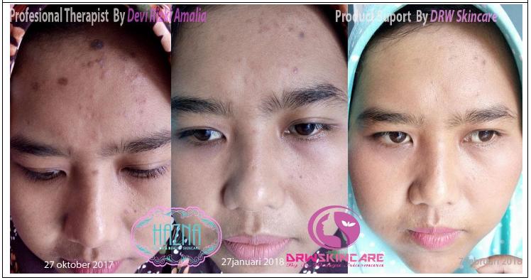 testimoni drw skincare whitening